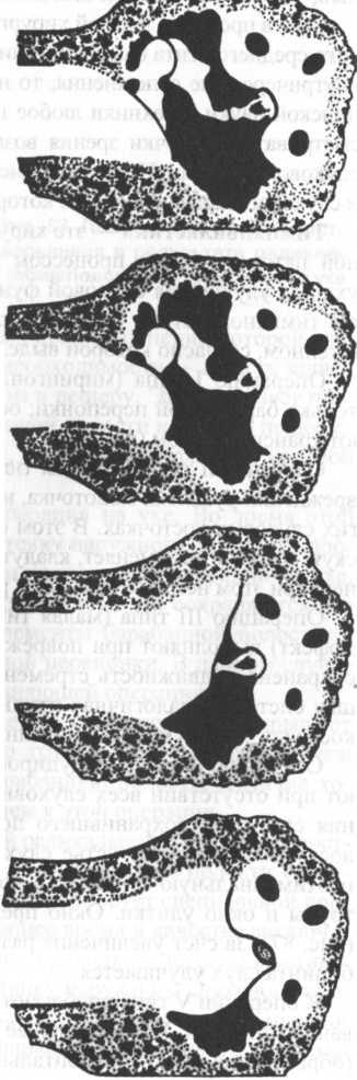 тимпанопластика фото